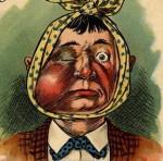 Man with swollen jaw, black eye
